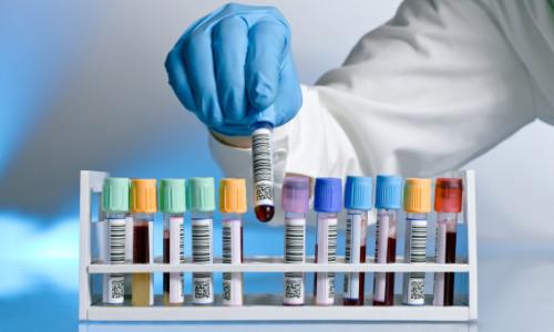Technology — Prometheon Pharma